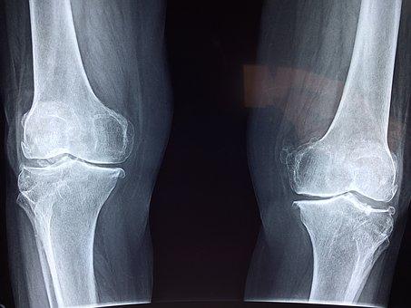 knee-2253047__340